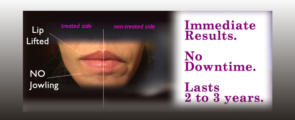 ThreadLift RajaniMD Non Surgical facelift Necklift chinlift Aging